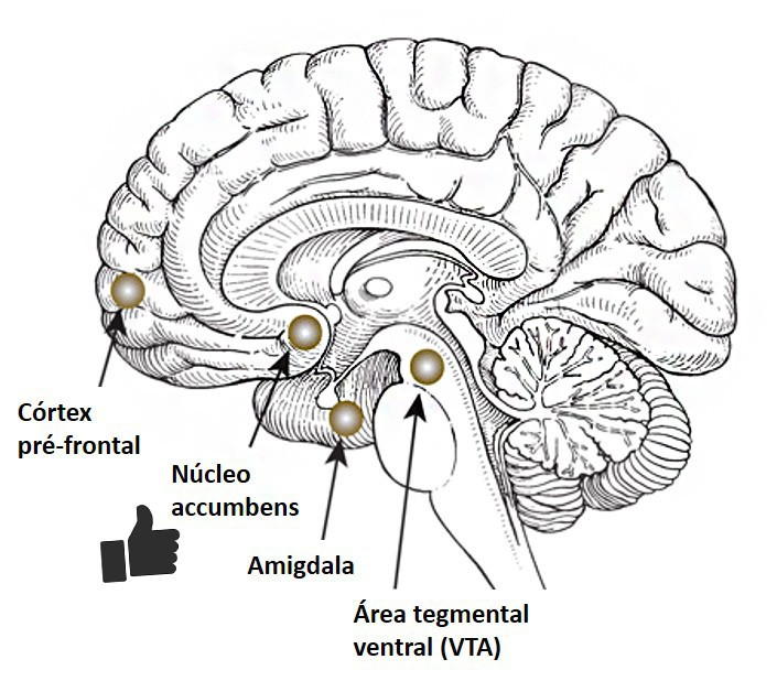 brainlike2